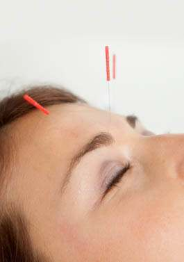 Is Treating Insomnia with Acupuncture the Ideal Natural Solution?